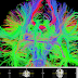 Diffusion Tensor Imaging 101