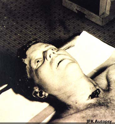president kennedy autopsy. kennedy autopsy pictures.