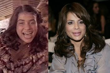 Before she was famous and after photos of Paula Abdul prove she is no stranger to plastic surgery