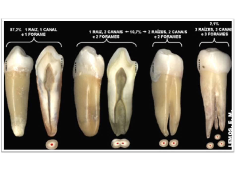 ENDODONCIA Casos Clínicos: Premolar Inferior con 3 conductos