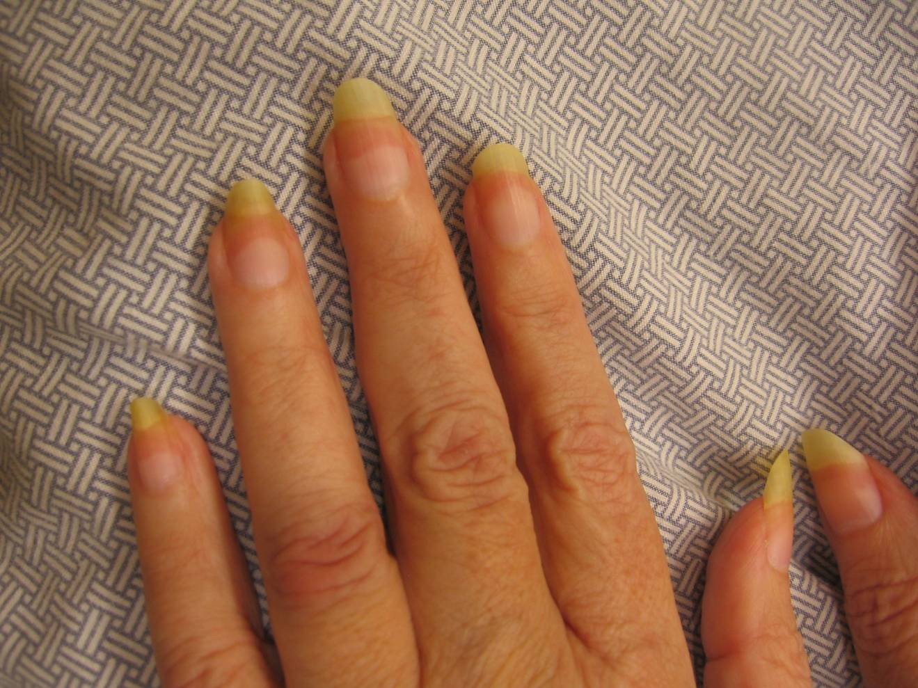 Terry Nails Beautify Themselves With Sweet