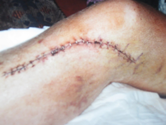 Mark's leg from surgery due to car accident