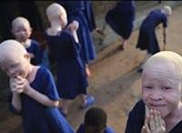Albino_Burundi_Massacre_death_immagine_image_picture_foto