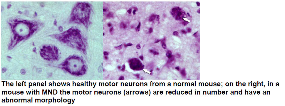 Motor Neuron Disease Cause And Cure