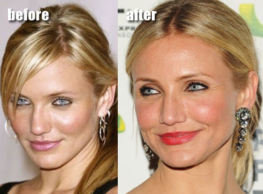 Cameron Diaz Before and After Plastic Surgery. Monday, May 10, 2010