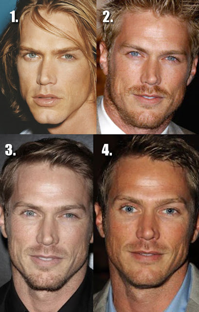 Jason Lewis Before and After Plastic Surgery