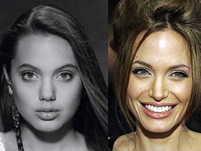 Angelina Jolie Before and After Nose Job