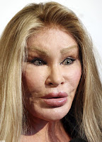 The Real Catwoman or Freaky Alien Jocelyn Wildenstein picture 6