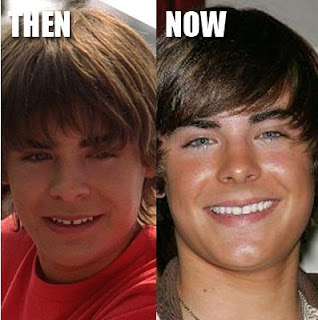 Zac Efron Before and After Plastic Surgery Teeth