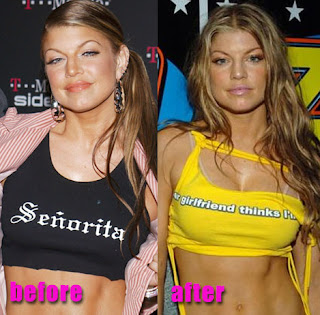 Image result for fergie cosmetic surgery before and after