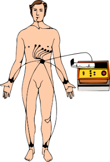 My Scary Heartbeat ECG test
