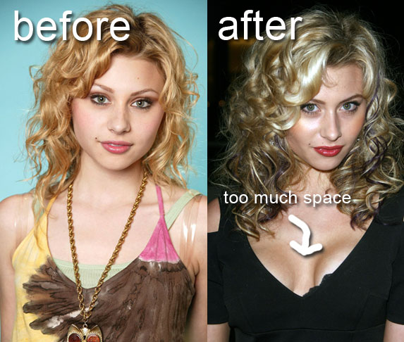 Aly Michalka Before and After Plastic Surgery. Thursday, June 10, 2010