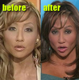 Mia Lee Before and After Cosmetic Surgery