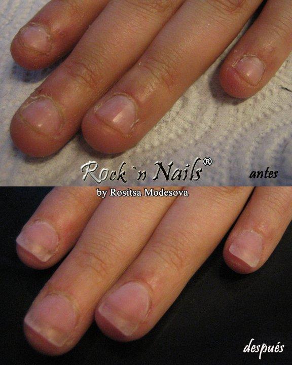 Rock\'n Nails: 2010