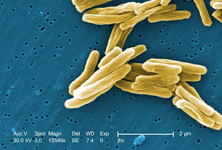 Mycobacterium tuberculosis - Photo credit: Janice Carr