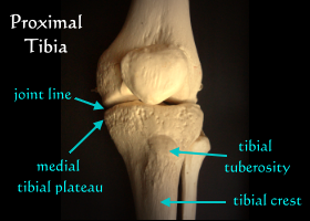 Fracture Of Tibia At Medial Plateau