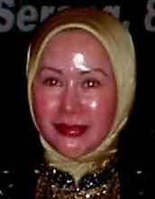 Muka Minyak Goreng Neraka Ratu Atut Chosiyah