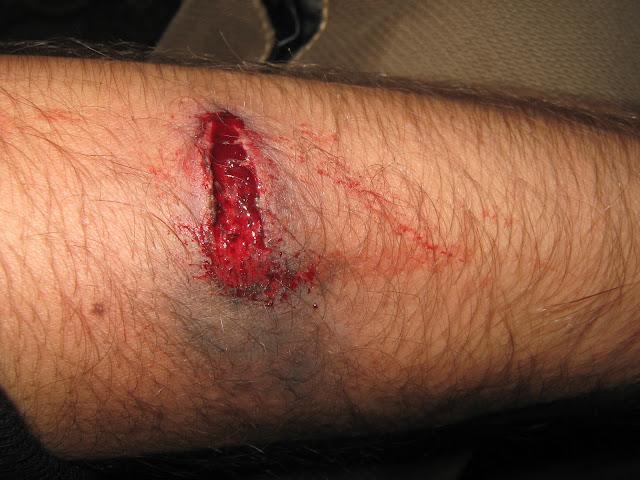 Ранение Огнестрельное