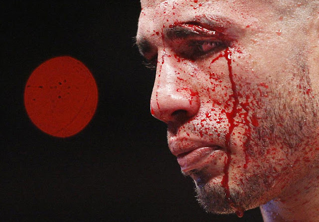 Miguel Angel Cotto bloody fight