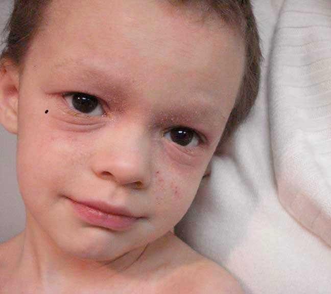 Складки под глазами у ребенка что это