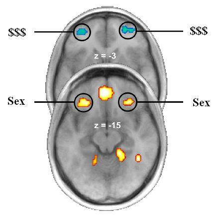 Sex and Money on the Brain