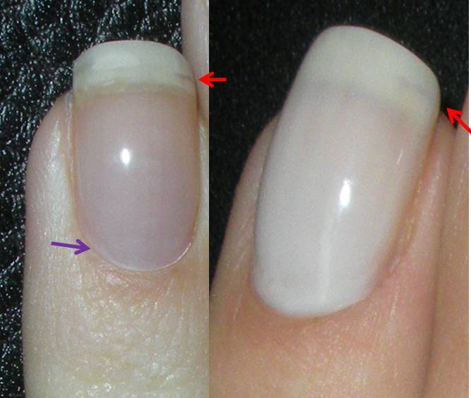 how to stop shellac from lifting