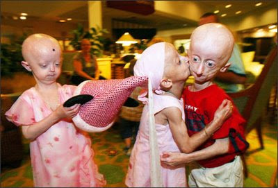 http://1.bp.blogspot.com/_zQj475e1CrI/StgtLQMZphI/AAAAAAAAANM/uf9HFeffkIY/s400/Penyakit+progeria.jpg