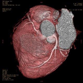 jantung, penyakit jantung