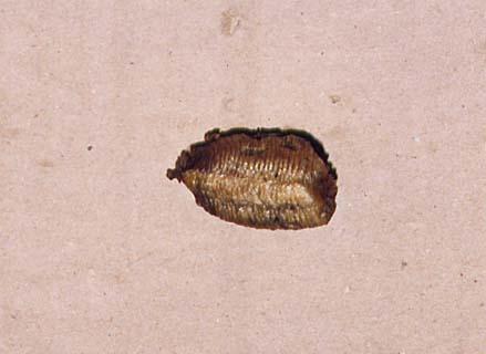 El hongo sobre los dedos de los pies sobre las uñas