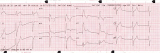 ECG Case study - 001 http://indonersiacenter.blogspot.com/