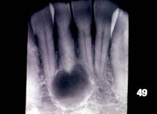 Rvision on Oral Pthology Slides Radicular+cyst