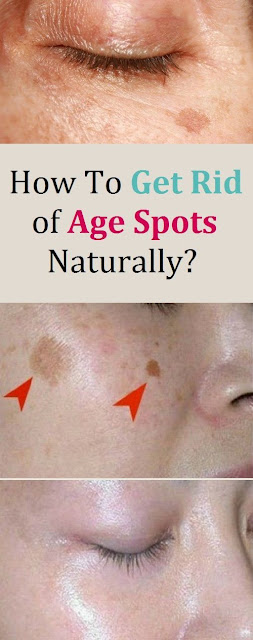 How to Get Rid of Freckles and Sun Spots