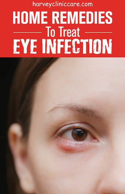 How To Cure An Eye Infection In Just 24 Hours With This Home Remedy?
