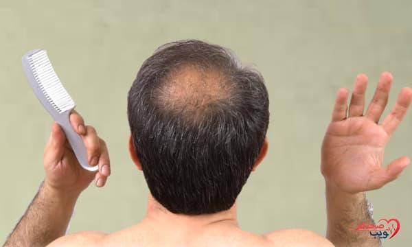 أسباب تساقط الشعر بكثرة عند الرجال وطرق الوقاية منه
