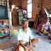 Yaipah Penderita Tumor Ganas di Muara Enim Butuh Perhatian Pemerintah