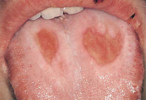 Red Lesions of the Oral Mucosa-Differential Diagnosis