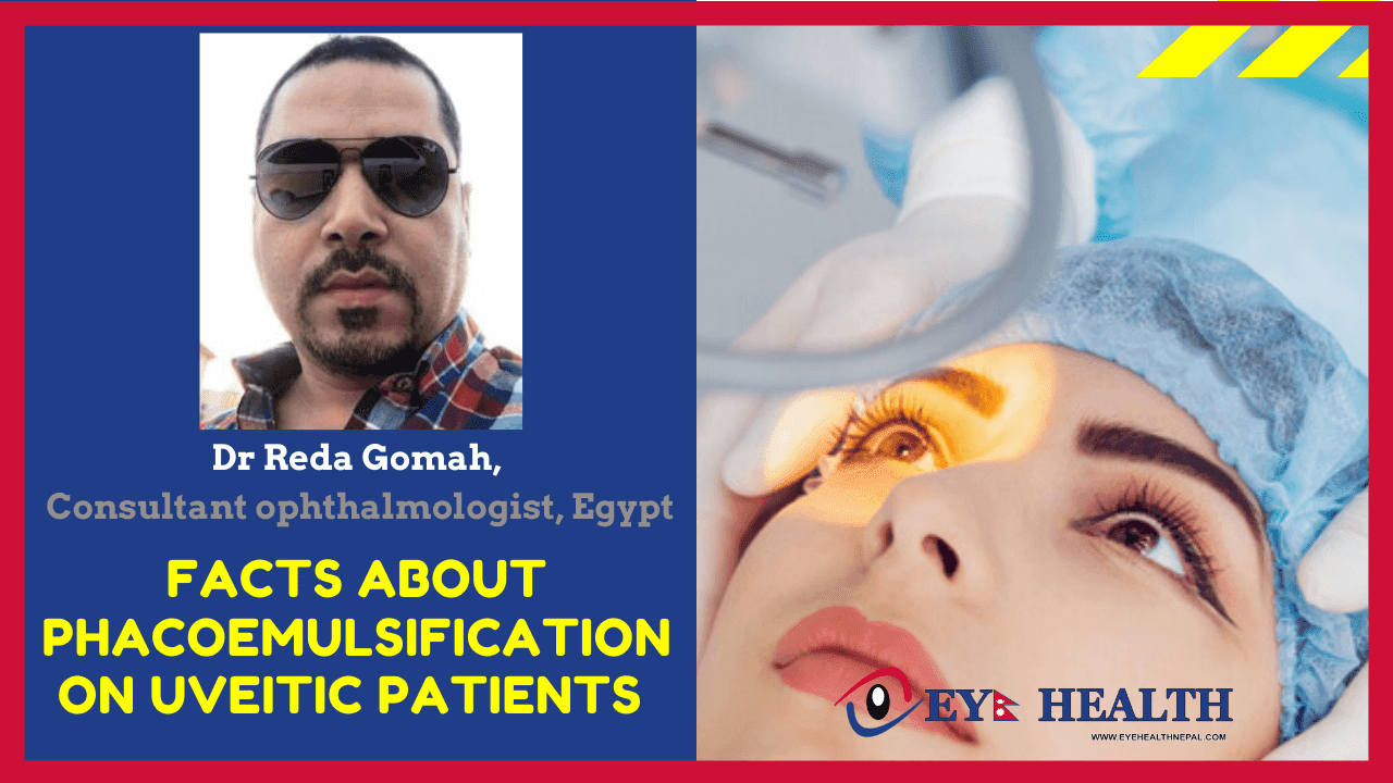 Dr.Reda Gomah articles about Phacoemulsification on Uveitis Patient