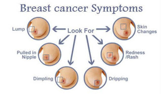 Inflammatory Breast Cancer Symptoms