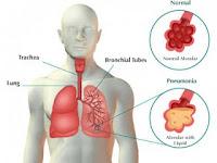 Resiko Terkena Paru-paru Basah