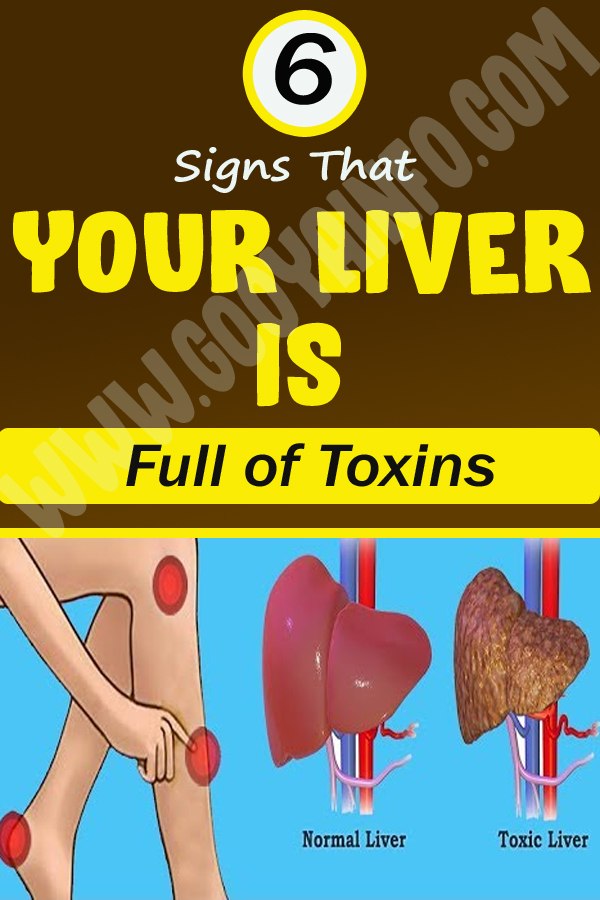 6 Signs That Your Liver is Full of Toxins
