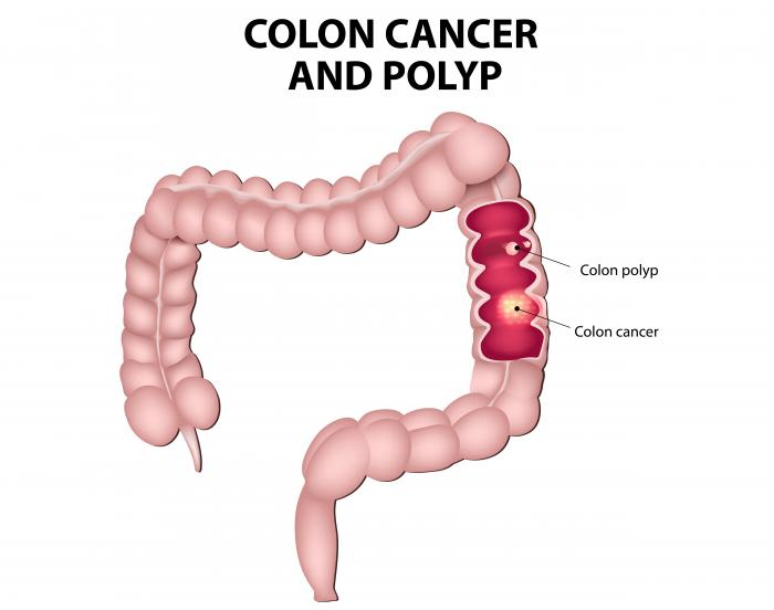 Pellet stool colon cancer