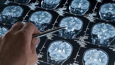 Νέο υπό δοκιμή φάρμακο δίνει ελπίδες για την καταπολέμηση της νόσου Αλτσχάιμερ