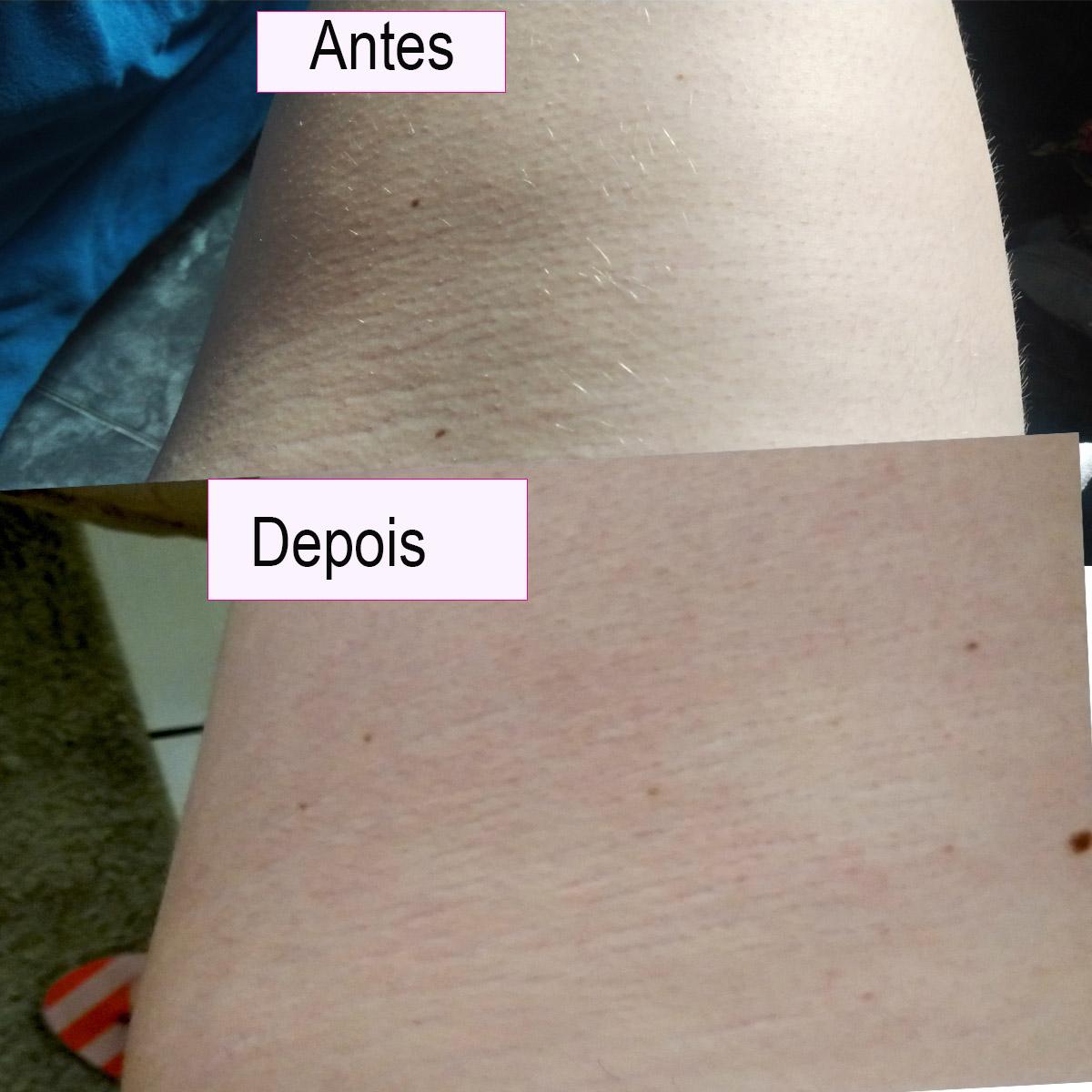 resultado no corpo cicatricure antiestrias