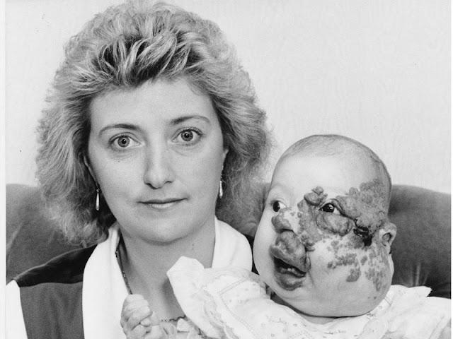 Невероятная история девочки с большим дефектом на лице, которая вышла замуж