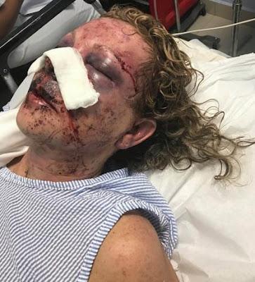 Turista denuncia fue atacada mientras vacacionaba en RD