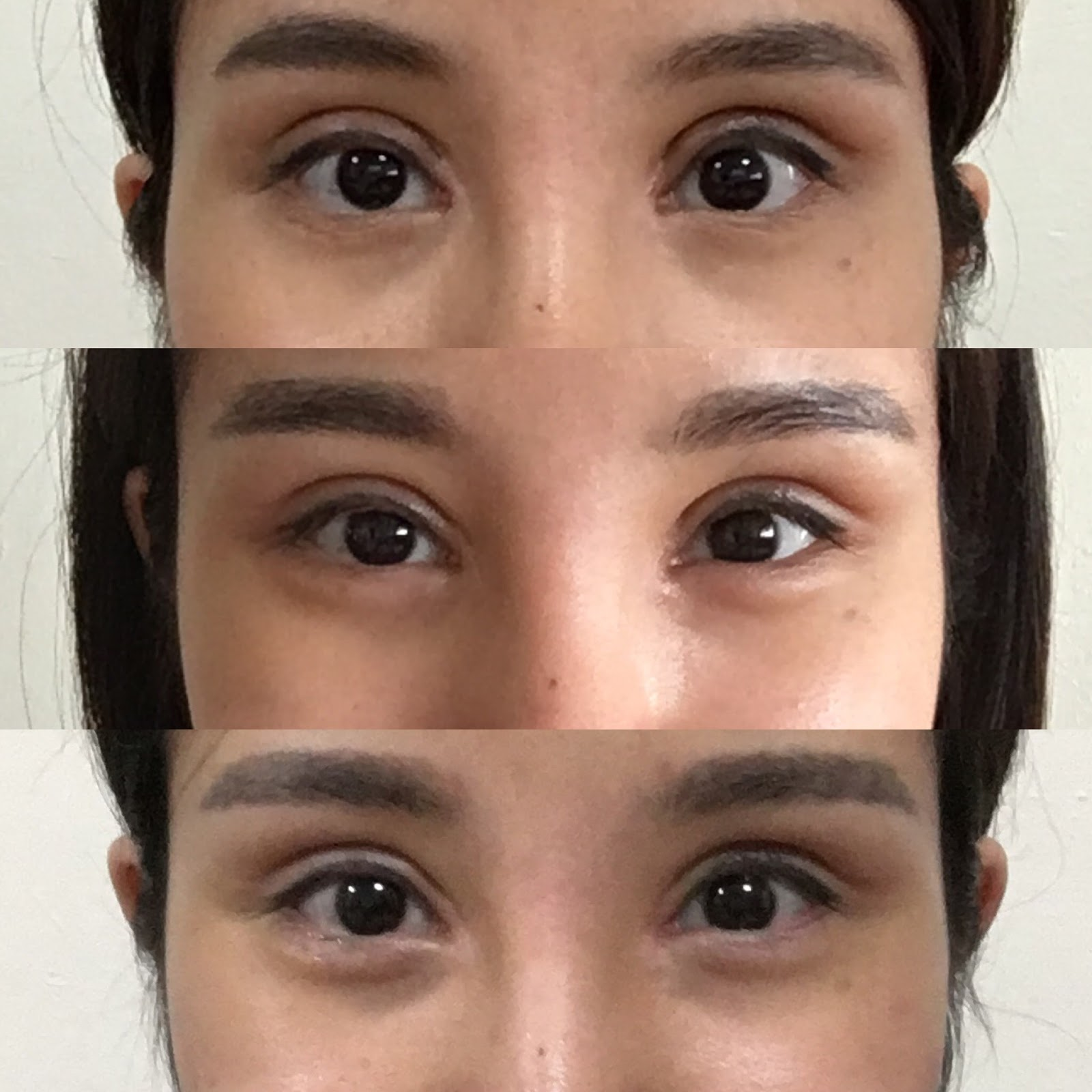 how to get double eyelids naturally yahoo
