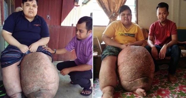 Lelaki Ini Terpaksa Tanggung Derita Penyakit Kaki Gajah, Kaki Kiri Membengkak Sehingga Berat Mencecah 60KG!