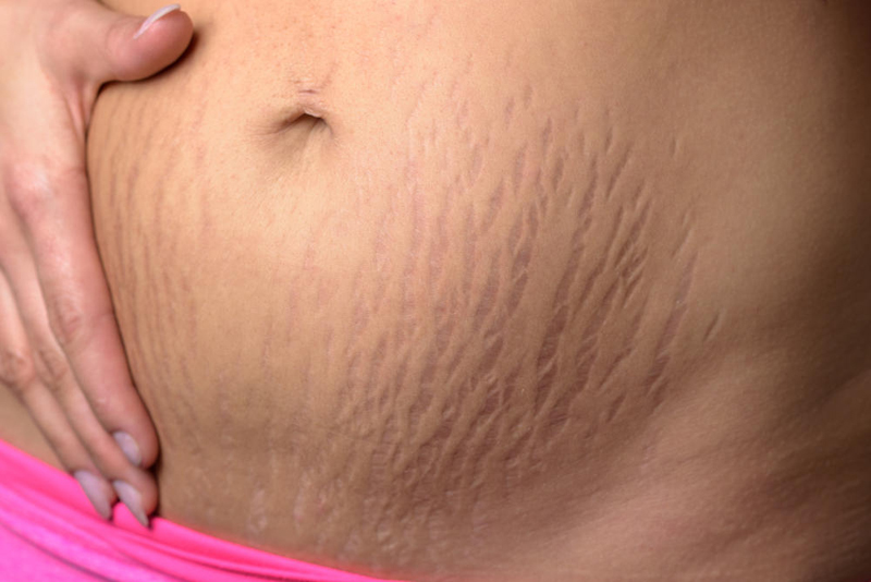Natural Remedies for Stretch Marks