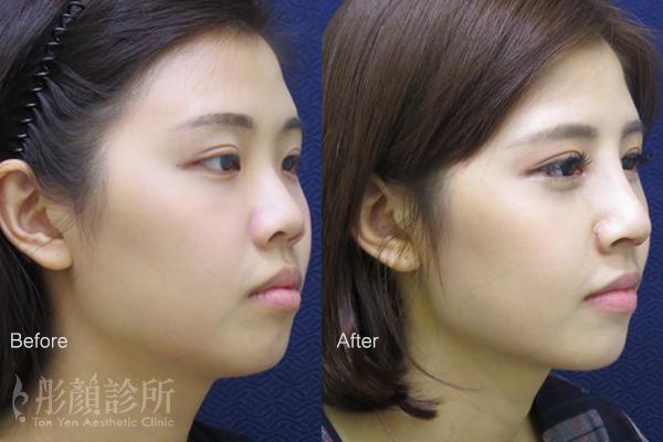 彤顏診所-隆鼻-立體結構式隆鼻-卡麥拉隆鼻-韓式隆鼻-桃園整形外科-縮鼻翼費用-隆鼻推薦-零死角美女