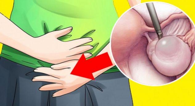 Waspadai Gejala Kista Ovarium Sejak Dini!! Kenali Ciri-Ciri Gejalanya, Para Wanita harus tau ini sebelum terlambat